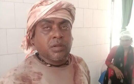 हिंदी समाचार |जौनपुर । दो पक्षों में मारपीट...